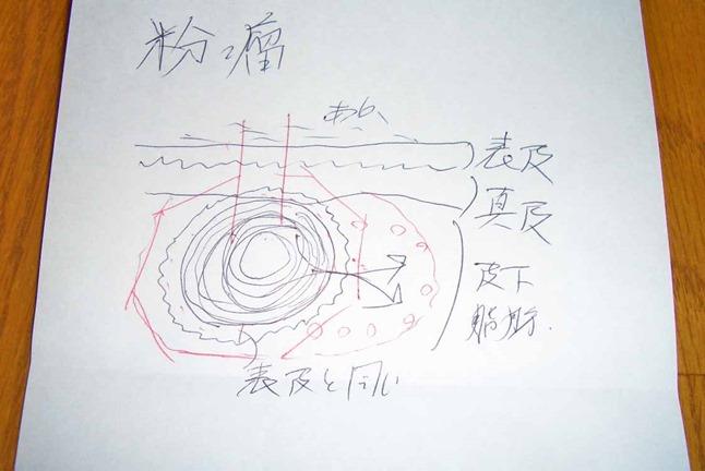 皮膚科の先生が書いたアテローム手術の説明図