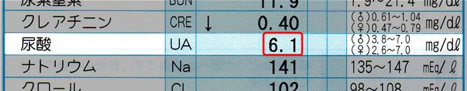 毎日牛乳をT杯飲み続けたら尿酸値が6.1まで下がった