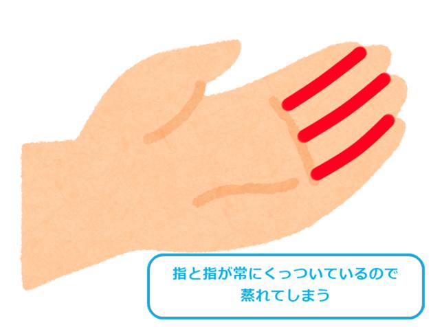指同士が常にくっついているため蒸れてしまう